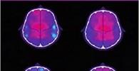 Neuropsicología de la Endocrinología