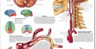cuadro lienzo cerebro vascular